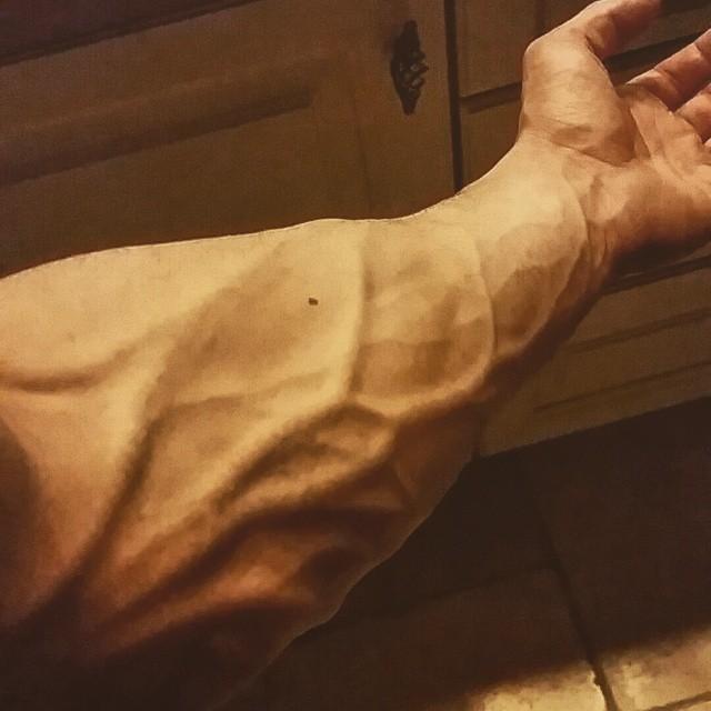dicke adern am arm